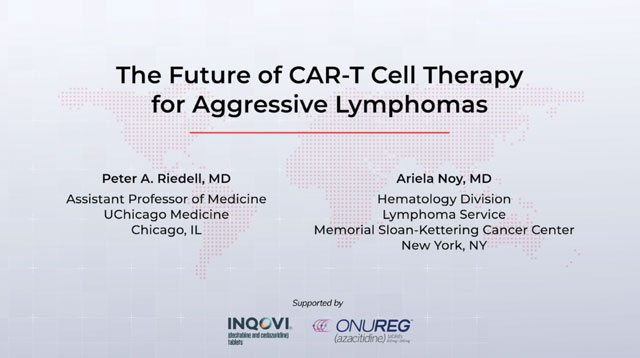 The Future of CAR-T Cell Therapy for Aggressive Lymphomas